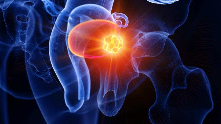 bladder cancer tumor
